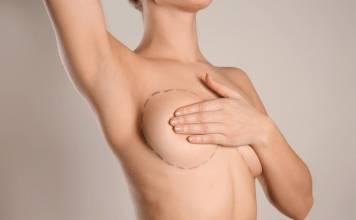 Kobieta przed zabiegiem powiększania piersi własną tkanką tłuszczowaą w Klinice Genesis